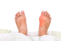 Can Gout Be Linked To Foods That Are Eaten?