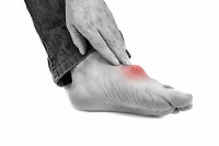 What Can Cause Gout?