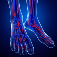 Different Forms of Neuropathy