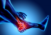 Can You Get Arthritis in Your Feet?